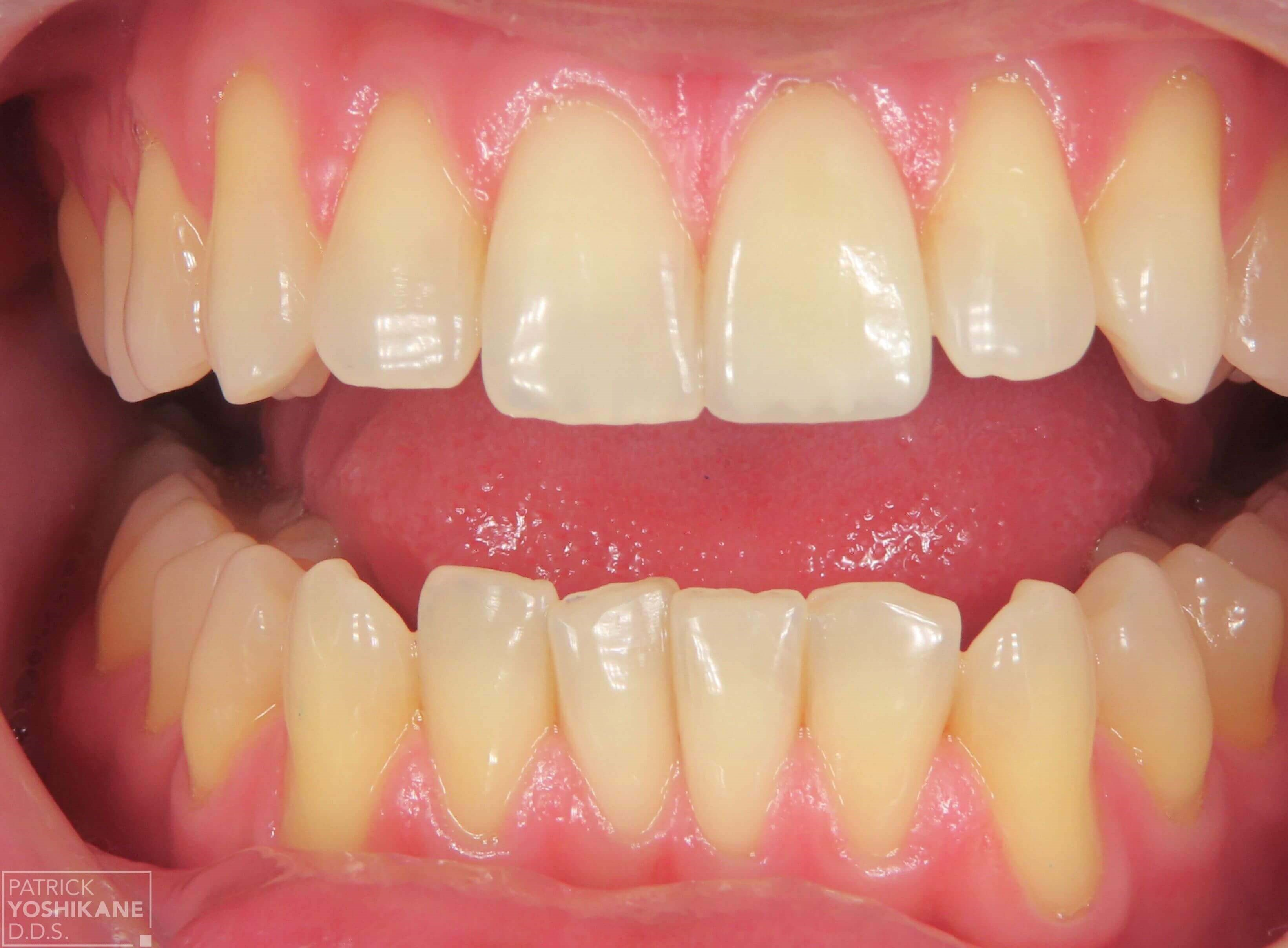 Single tooth Porcelain crown After