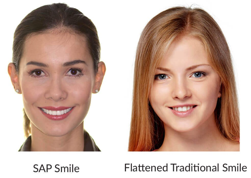 The Art Of Braces Smile Arc Protection The Art Of Braces